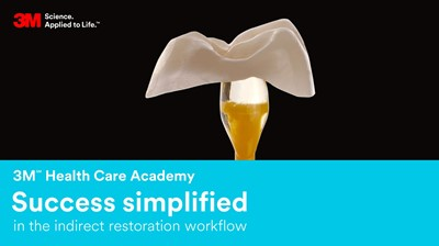 Success simplified in the indirect restoration workflow